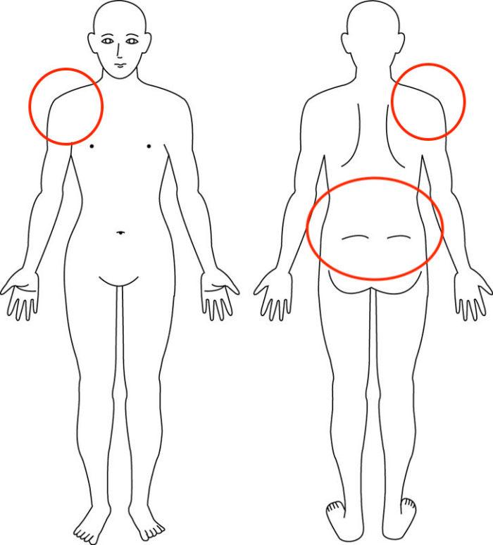 【症例】産後からの腰痛と産前からの肩痛でお悩みの症例
