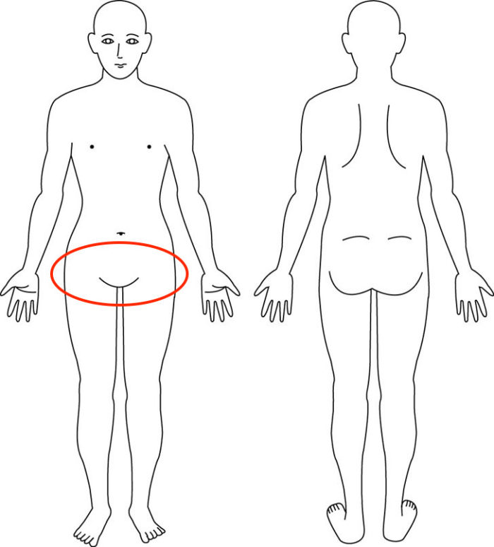 【症例】股関節のつっぱりやつまりでお悩みの症例