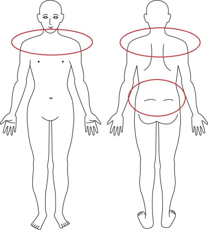 【症例】4年前の産後からの腰痛でお悩みの症例