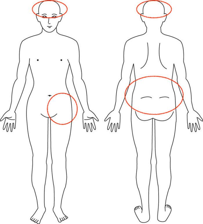 【症例】5年前からの腰痛でお悩みの症例