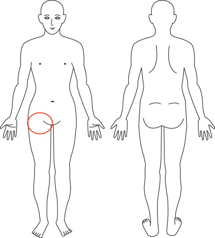 大阪,整体,症例,股関節痛
