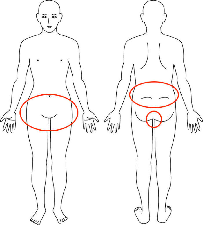【症例】側弯症が影響した尾骨痛や腰痛や股関節痛でお悩みの症例