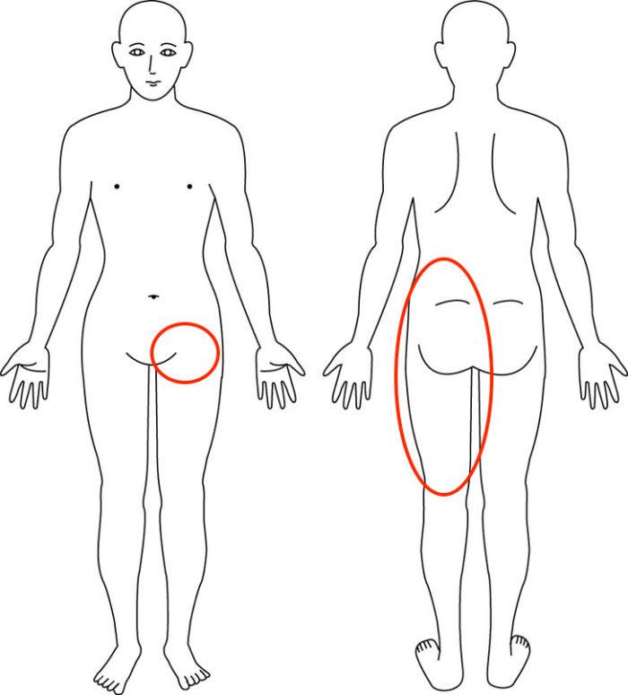 【症例】妊娠中の腰から太腿にかけての痛みでお悩みの症例