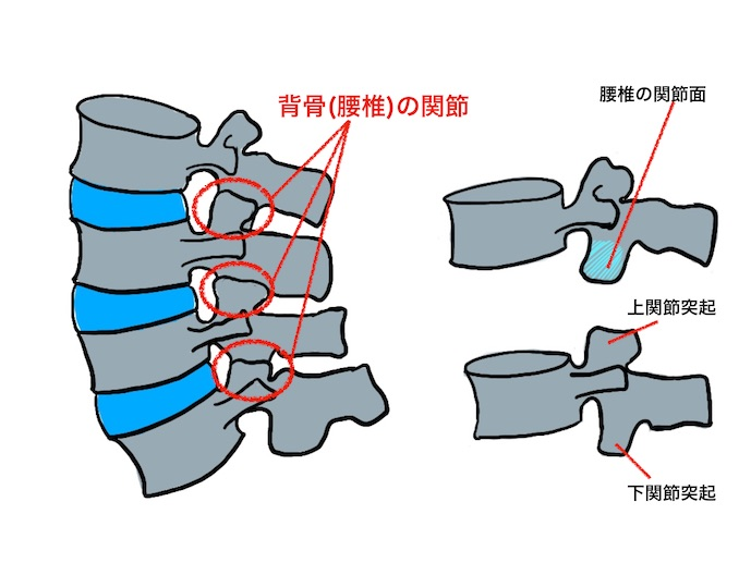 椎間関節症