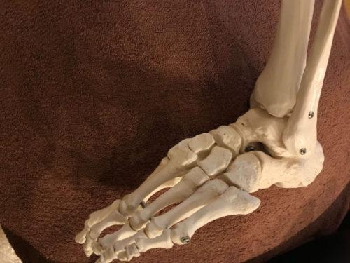 捻挫もしていないのに足首が歩くと痛い?