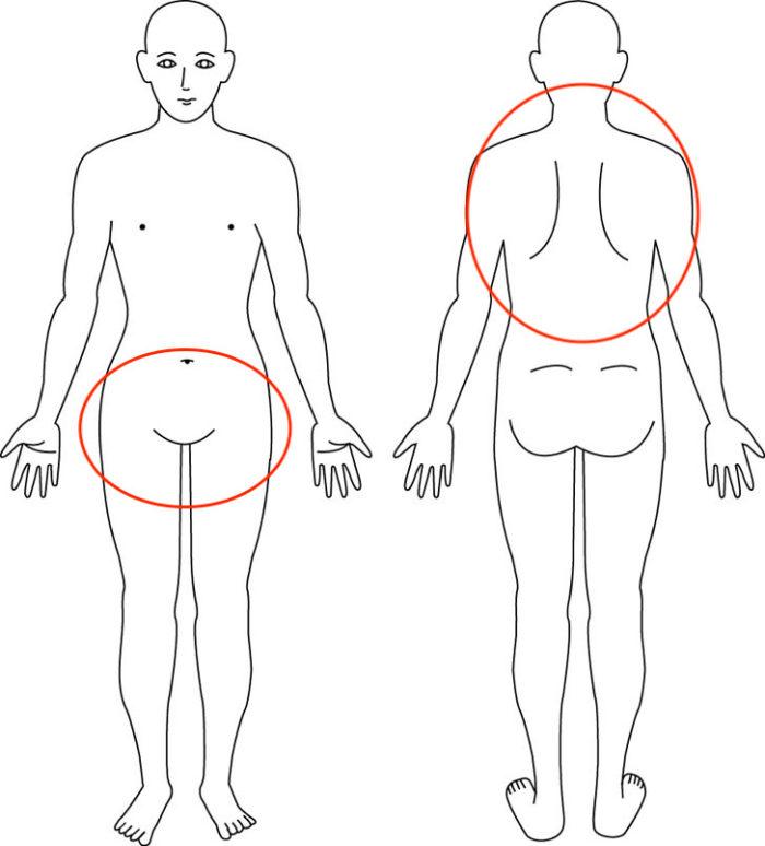 【症例】背部痛や尿漏れでお悩み