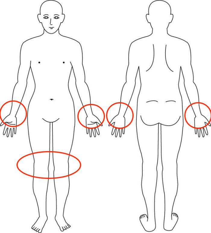 【症例】産後から両手の腱鞘炎と両膝の症状でお悩みだった方の解消例