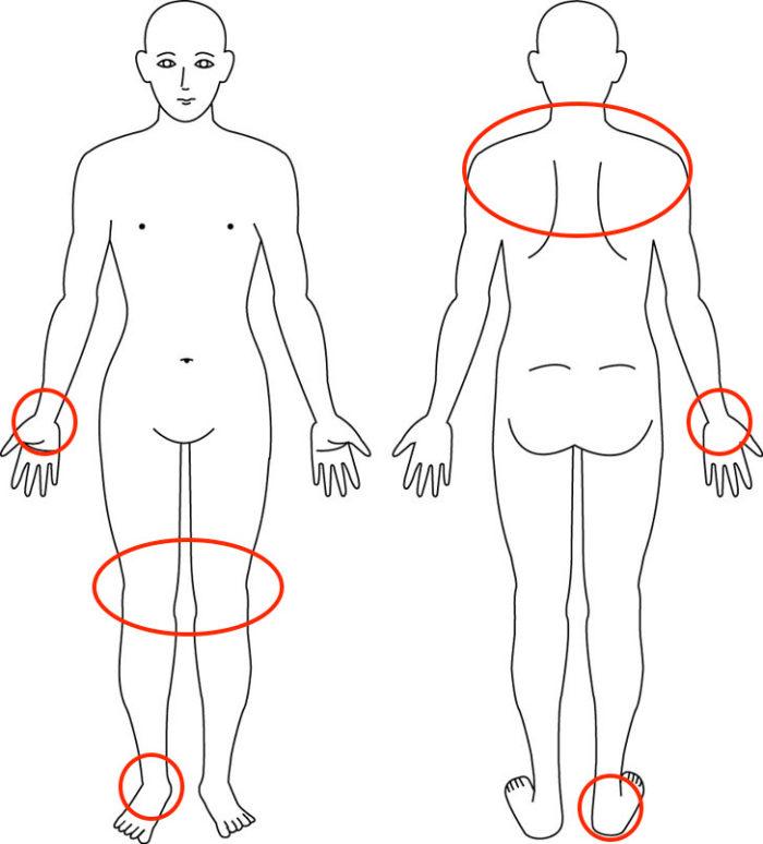 【症例】初産後での腱鞘炎でお悩みの方の解消例