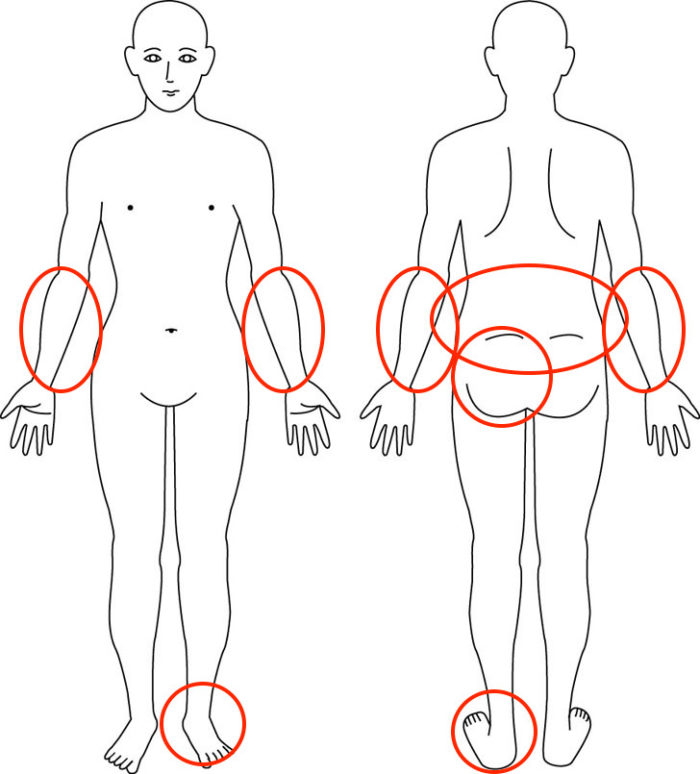 【症例】産後からのお尻の症状でお悩みの方の解消例