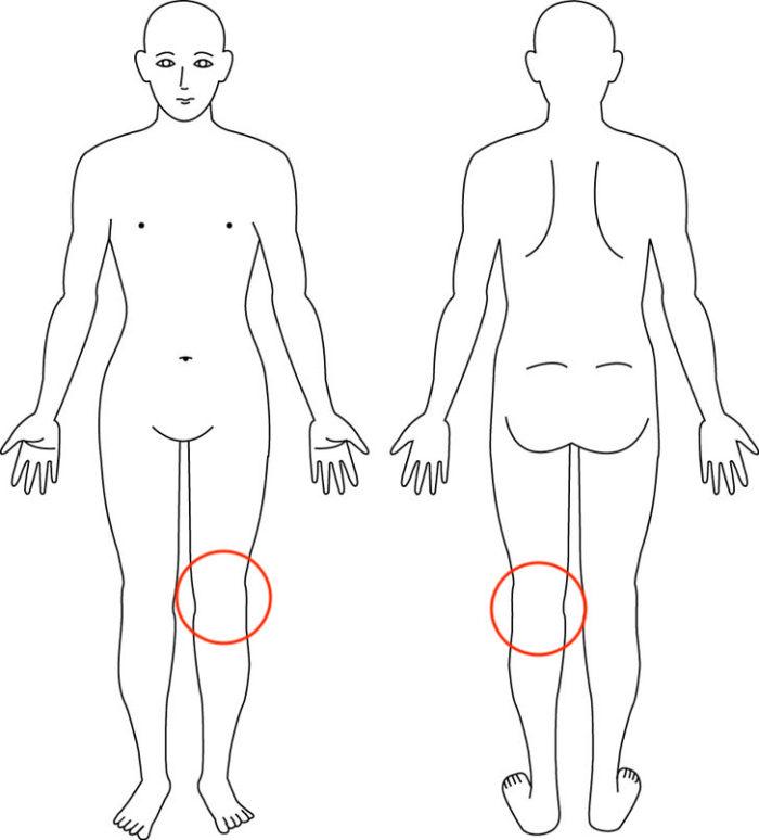 【症例】伸ばす動きで起こる膝の痛みが改善