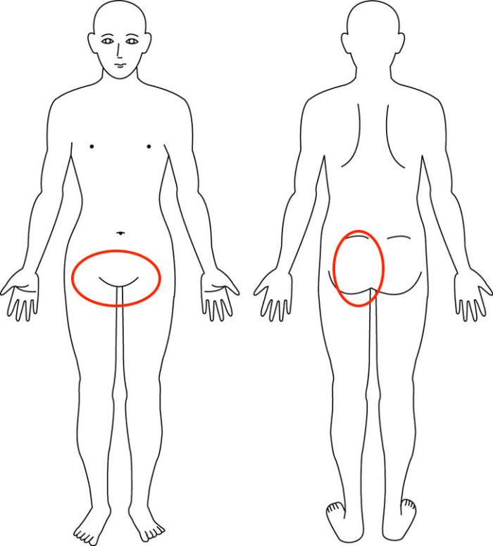【症例】起き上がる際の恥骨痛と殿部痛ケースの改善例