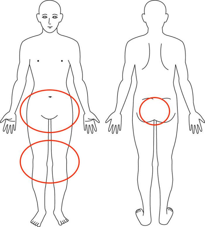 【症例】産後から股関節や膝の症状でお悩みだった方の解消例