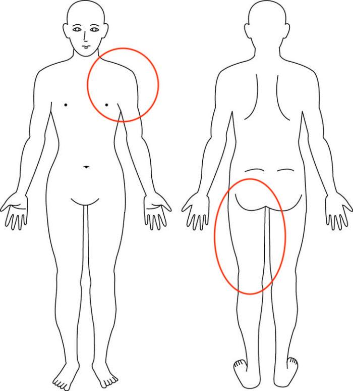【症例】肩の痛みと太腿裏の違和感