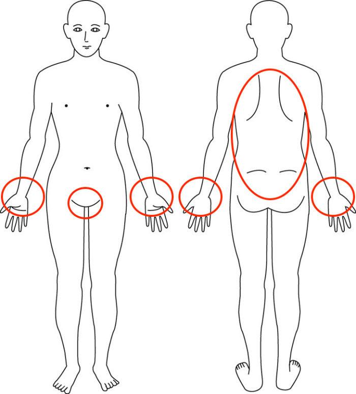 【症例】産後からの腰痛でグラグラ感もあったお悩みの症例