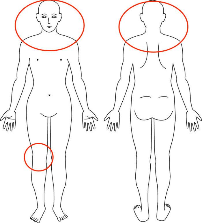 【症例】産後からの膝痛や肩こり、頭痛、尿漏れでお悩みの症例