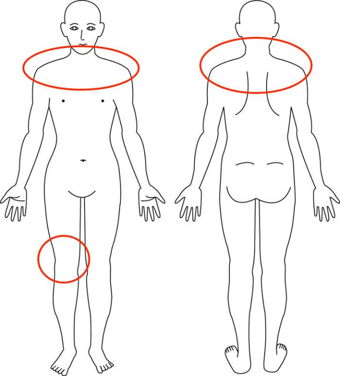 【症例】産後からの膝痛と慢性的にあった肩こりの悪化でお悩みの症例