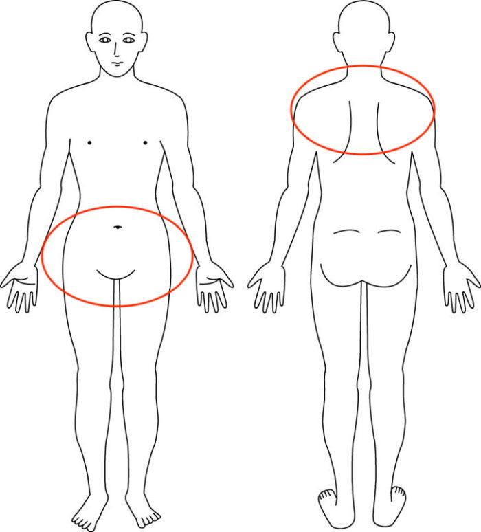 【症例】産後から骨盤がグラグラで力が入らない症状でお悩みだった方の解消例