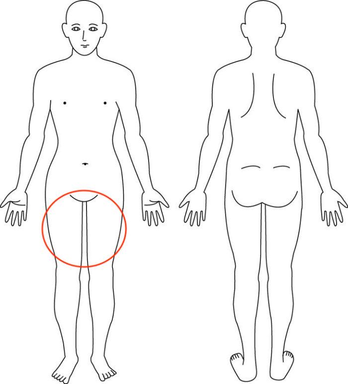 【症例】両大腿部前面の疲労