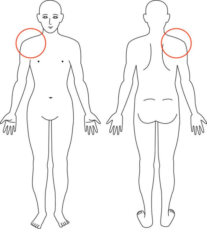 【症例】肩の痛みと股関節の関係|箕面市男性|整体