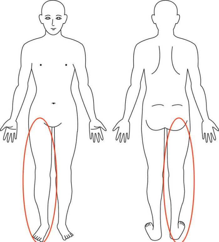 【症例】身体が傾き、足を引きずりながら歩いている感覚