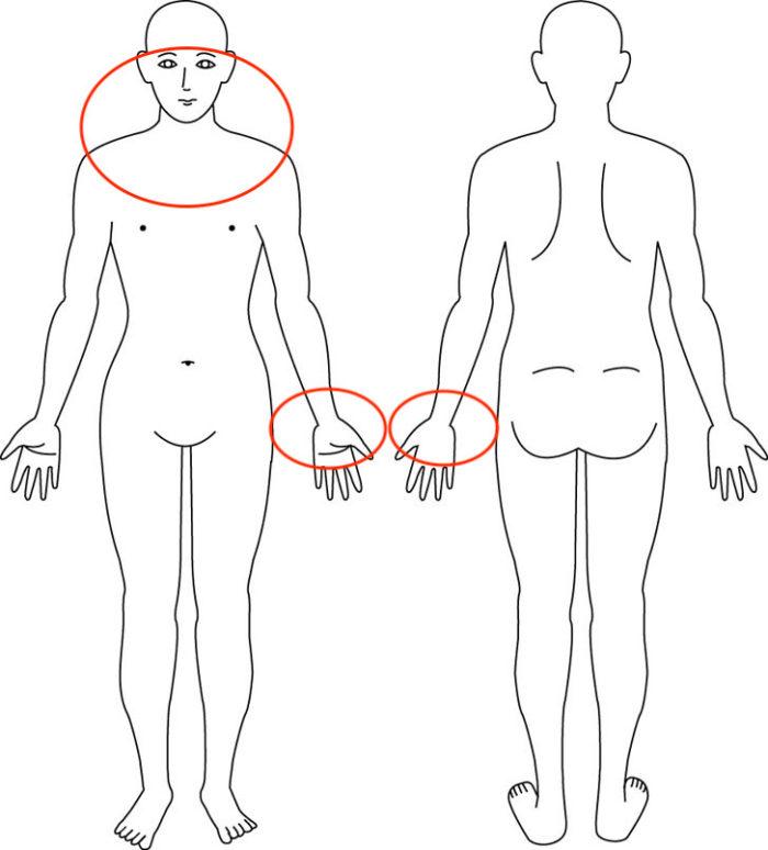 【症例】恥骨をけられたことによる鞭打ち症状(吐き気・しびれ)