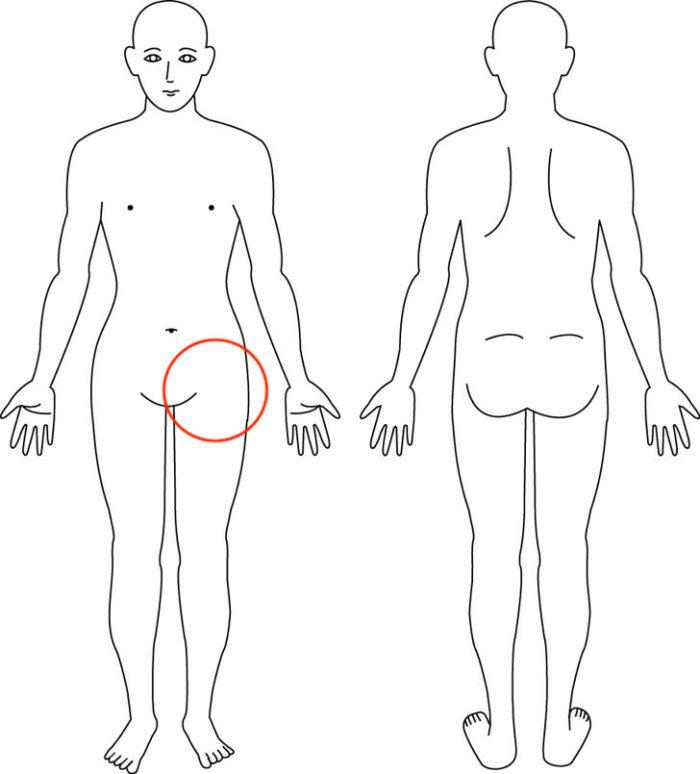 【症例】スポーツしていて(ダンス)で傷めた股関節|箕面市の女性