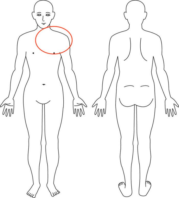 【症例】左胸の激痛|宝塚市女性|整体