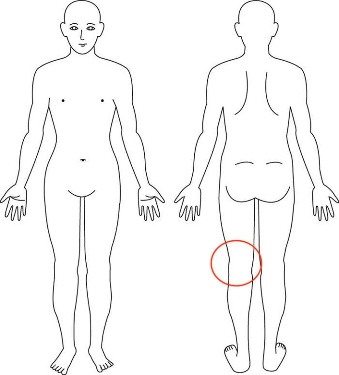 【症例】左の膝裏の痛み・・・週に20km以上は軽く走る方|箕面市男性|整体
