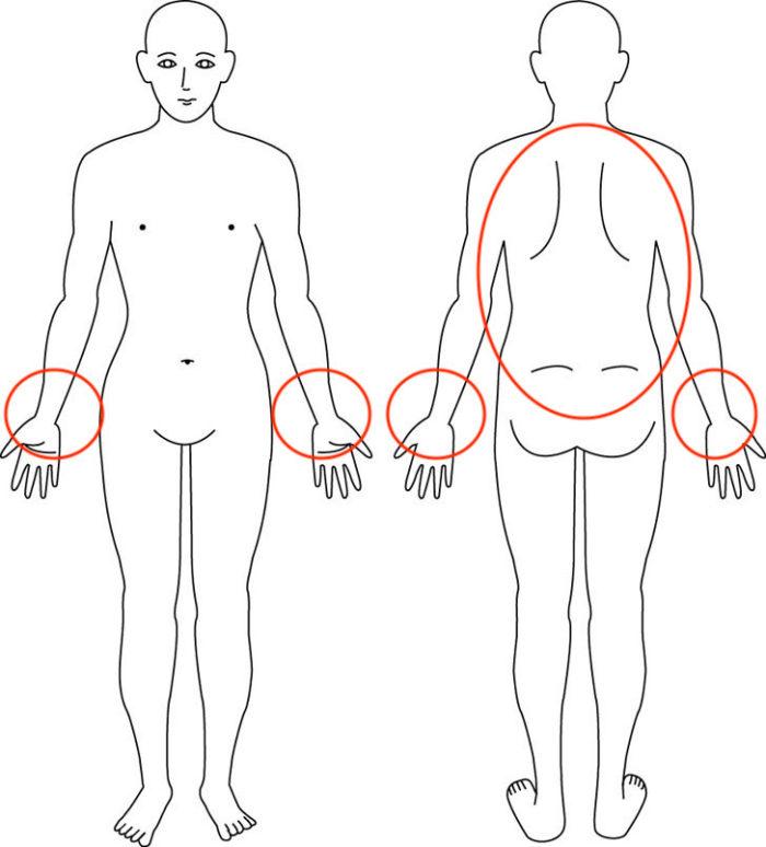 なぜあの人の腱鞘炎はたった5分で、しかも手首を触らずに回復したのか??