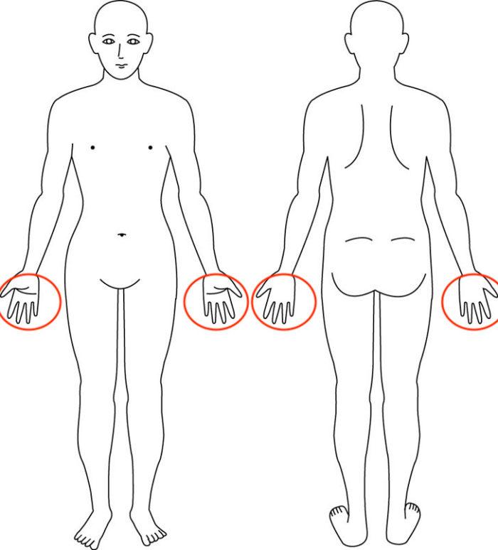 【症例】片手で物を持つことも出来なくなった腱鞘炎