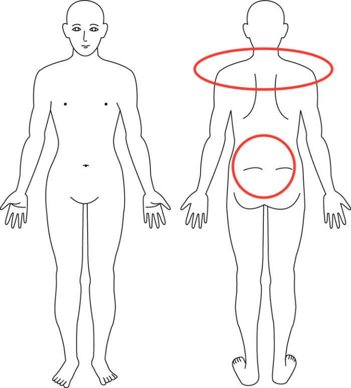 【症例】産後からの腰痛や肩こりでお悩みの症例