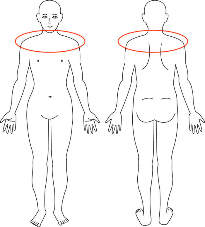 【症例】鎖骨の奥が痛む肩こりの改善例