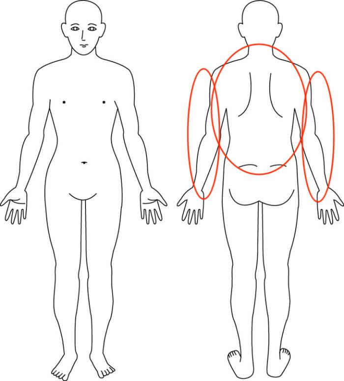 症例,背中のだるい痛み,大阪,整体