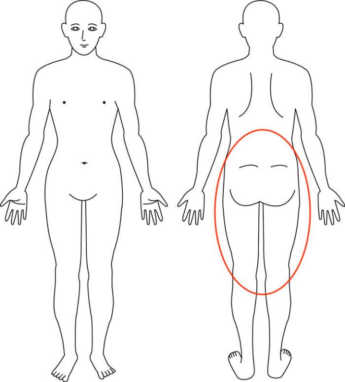 【症例】お尻から膝にかけての痛み