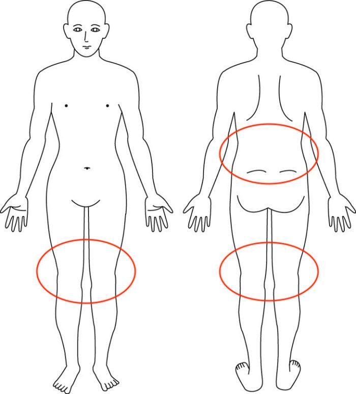 【症例】あぐらがかけないほどの膝の痛み|豊中市女性|骨盤矯正