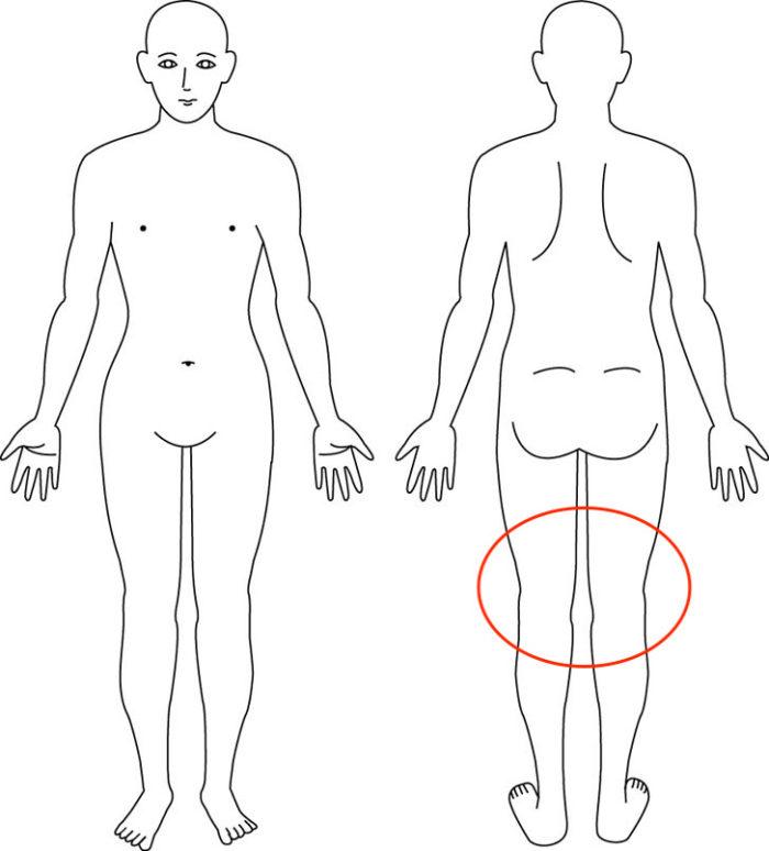【症例】バレエで痛めた膝裏の痛みが整体で改善