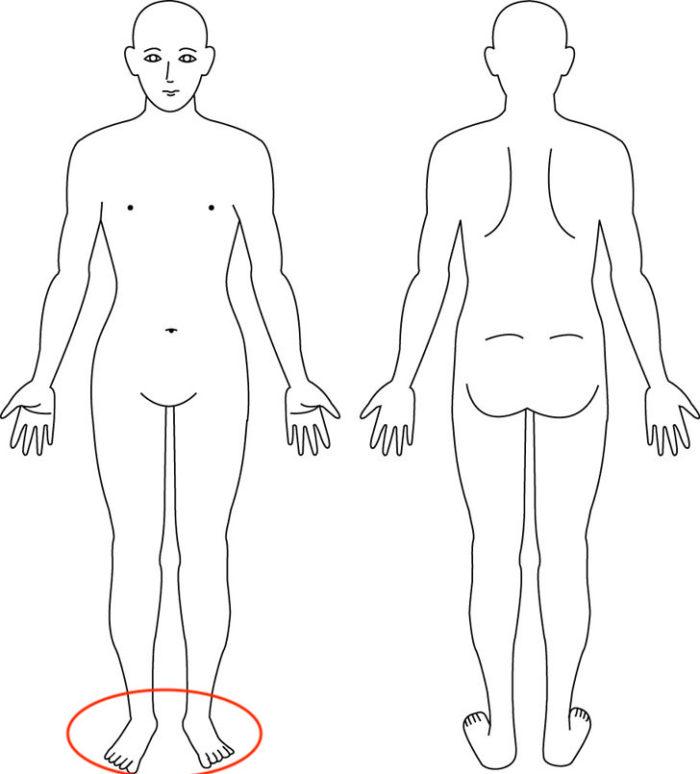 【症例】ずっと悩まされた足底部の痛みは太ももが原因。