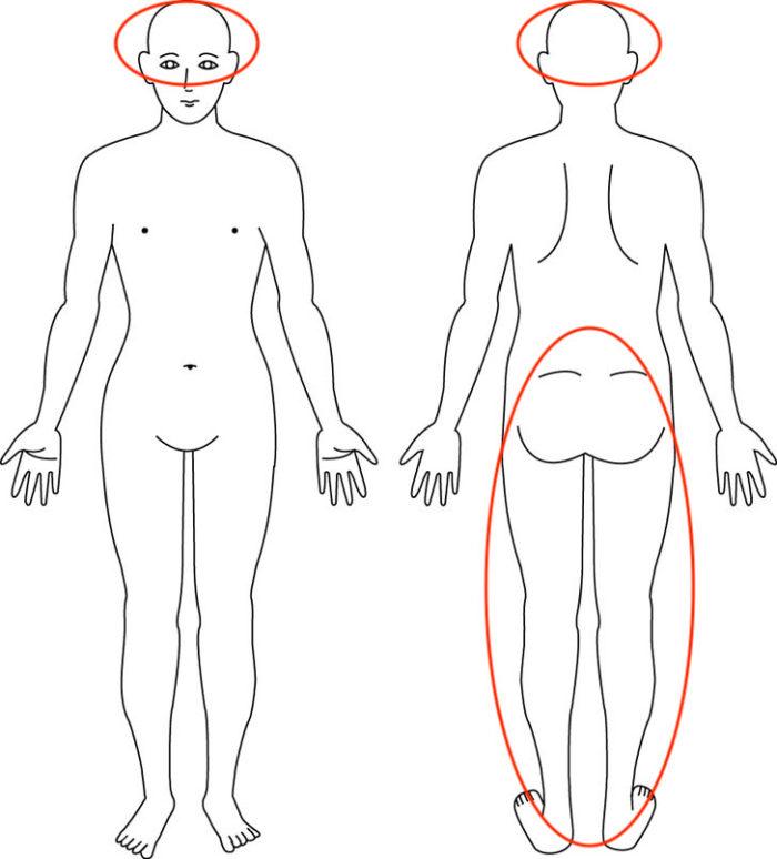 【症例】産後 左の坐骨神経痛、頭痛