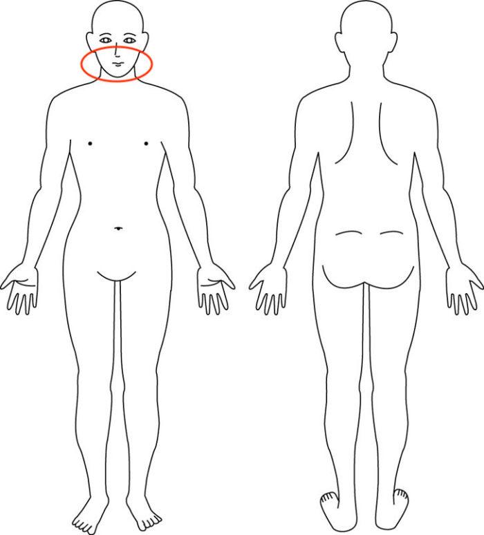 【症例】突然の顎の痛みはバランスと普段の行動が原因