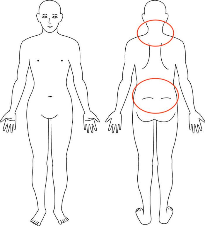 肩こり,腰痛,症例