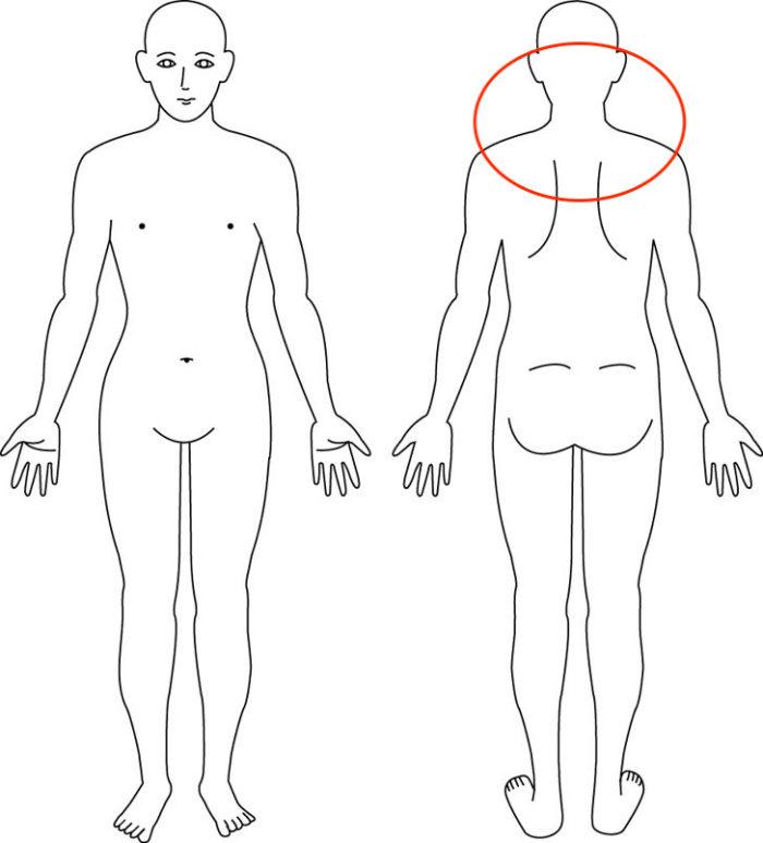 【症例】抱っこ等によってひどくなった肩凝り、頭痛が解消