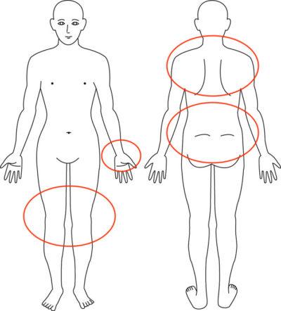 【症例】産後のあらゆる部分の痛み
