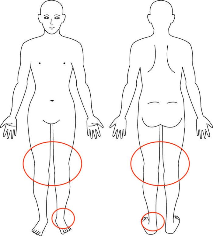 【症例】急に腫れて痛む膝と足首|池田市女性|整体